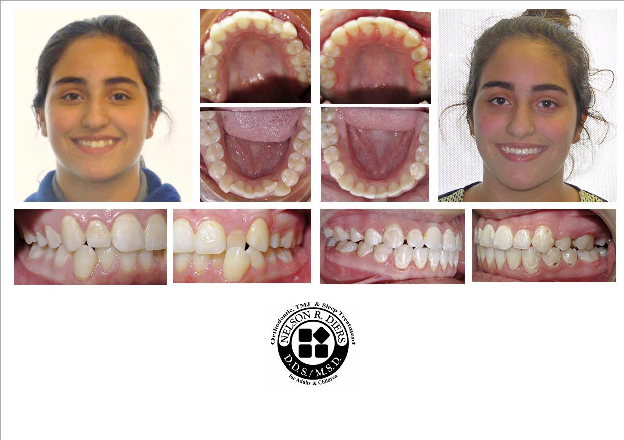 WSCOMPOSITELAYALZ before  after