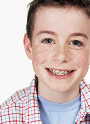 A smiling child orthodontics patient with traditional braces in Cincinnati, OH