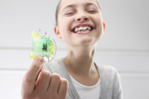 Early Interceptive Treatment at Nelson R. Diers Orthodontics